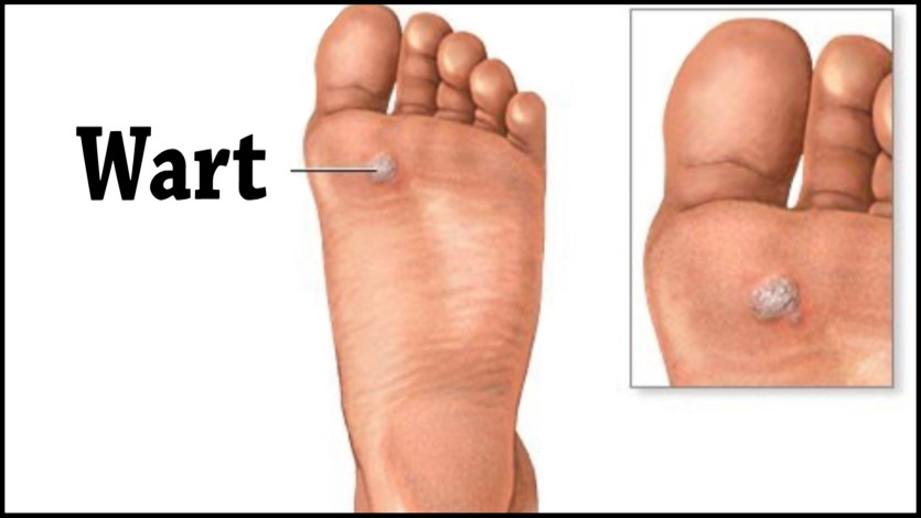 Verrucas, Otherwise Known as Plantar Warts - Roy A. Rothman, DPM ...
