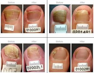 Toenail Laser Fungus Laser Treatment - Renaissance Foot & Ankle ...