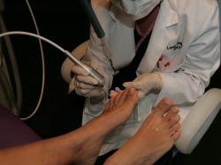 Laser Foot Treatment