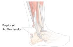 achiles-tendon