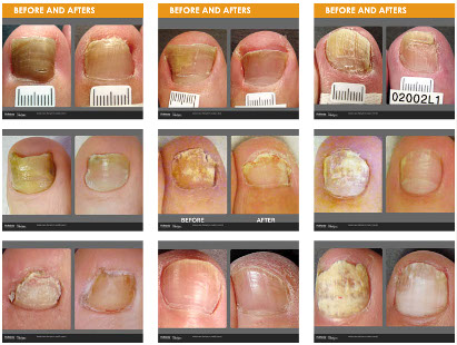 pinpointe-footlaser_before-after-gallery