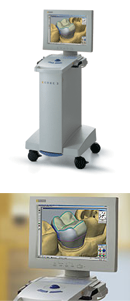 cerec3 as Smart Object-1