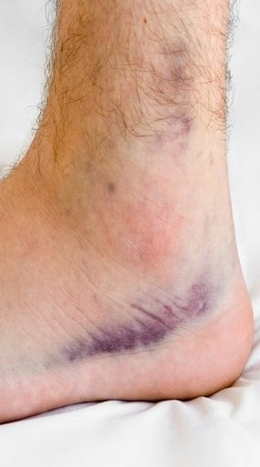 sprains_strains