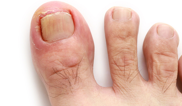 Ingrown Toenails in Scottsdale