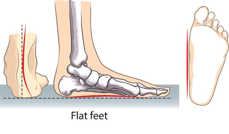 Are fallen arches a real foot problem?