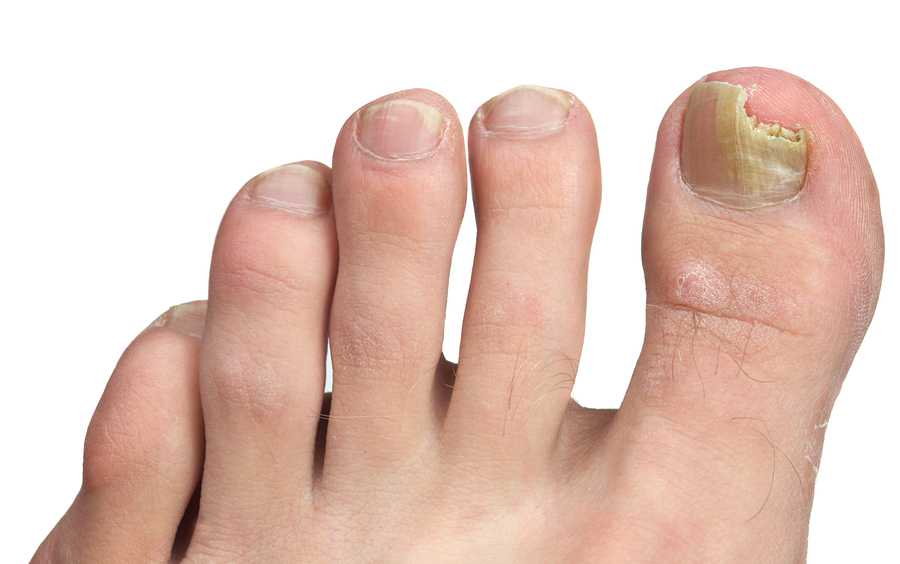 Toenail Fungus Treatment in Roanoke | Podiatrist in Roanoke, TX