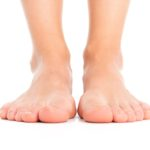 Treating Flat Feet