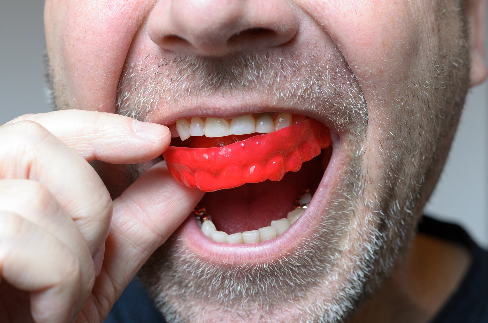 Man placing a red bite plate in his mouth to protect his teeth at night from grinding caused by bruxism close up view of his hand and the appliance