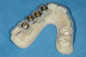 implant surgical guide