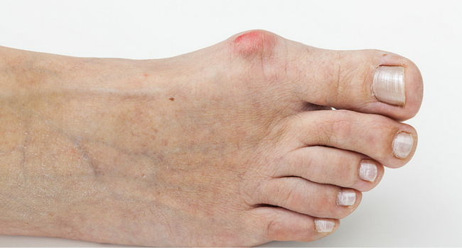 bunion treatment in boca raton and boynton beach