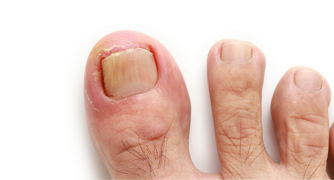 toenail fungus treatment in boca raton and boynton beach