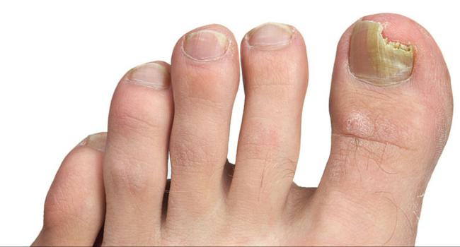 Toenail Fungus Treatment   Family Foot Center