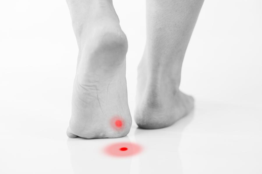 Callus or plantar wart under foot rear view