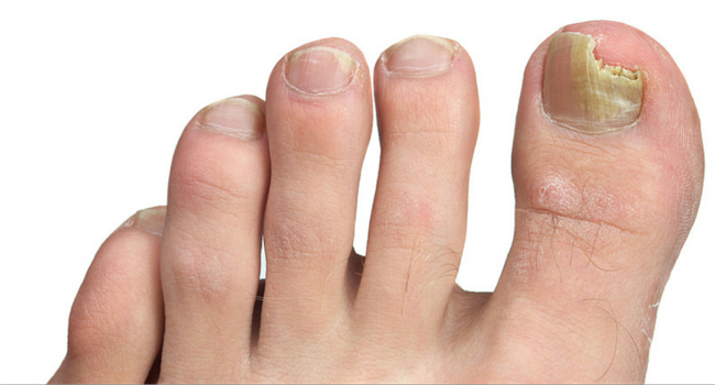 Toenail Fungus Treatment in Paoli | Podiatrist in Paoli, PA