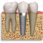 Dental-Implants-B