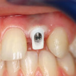 Implant1a
