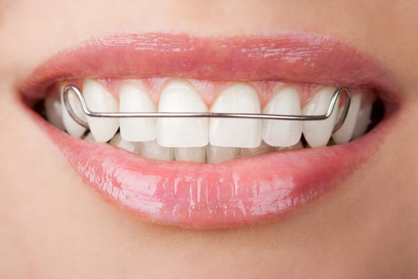 retainer-photo-of-front-teeth