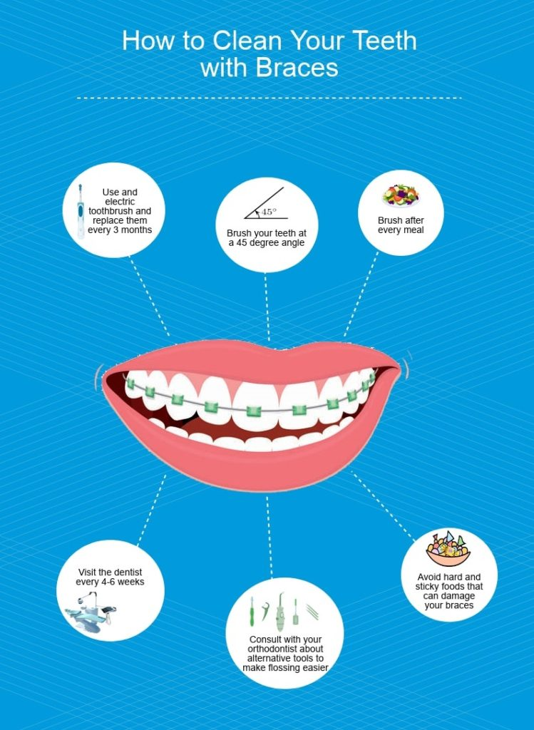 Tips on Using Floss with Braces