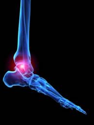 arthritis5