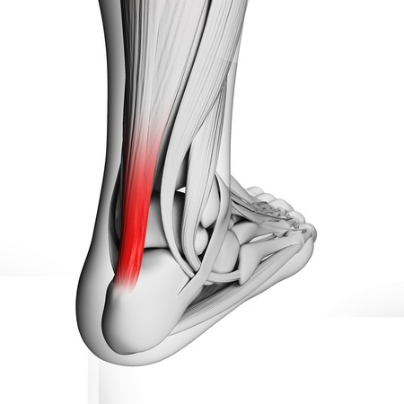 18448338 - 3d rendered illustration of the achilles tendon