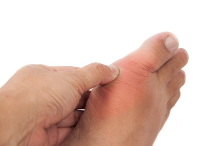 34515085 - finger pressing on gout inflamed part of foot