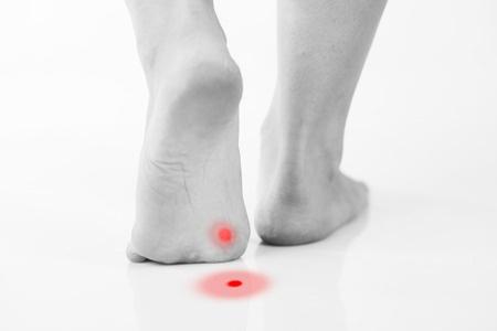 35378761 - callus or plantar wart under foot, rear view