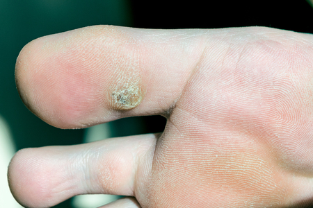 80507656 - plantar wart on big toe. visible black dots warts. shown the sole of the foot and toes.