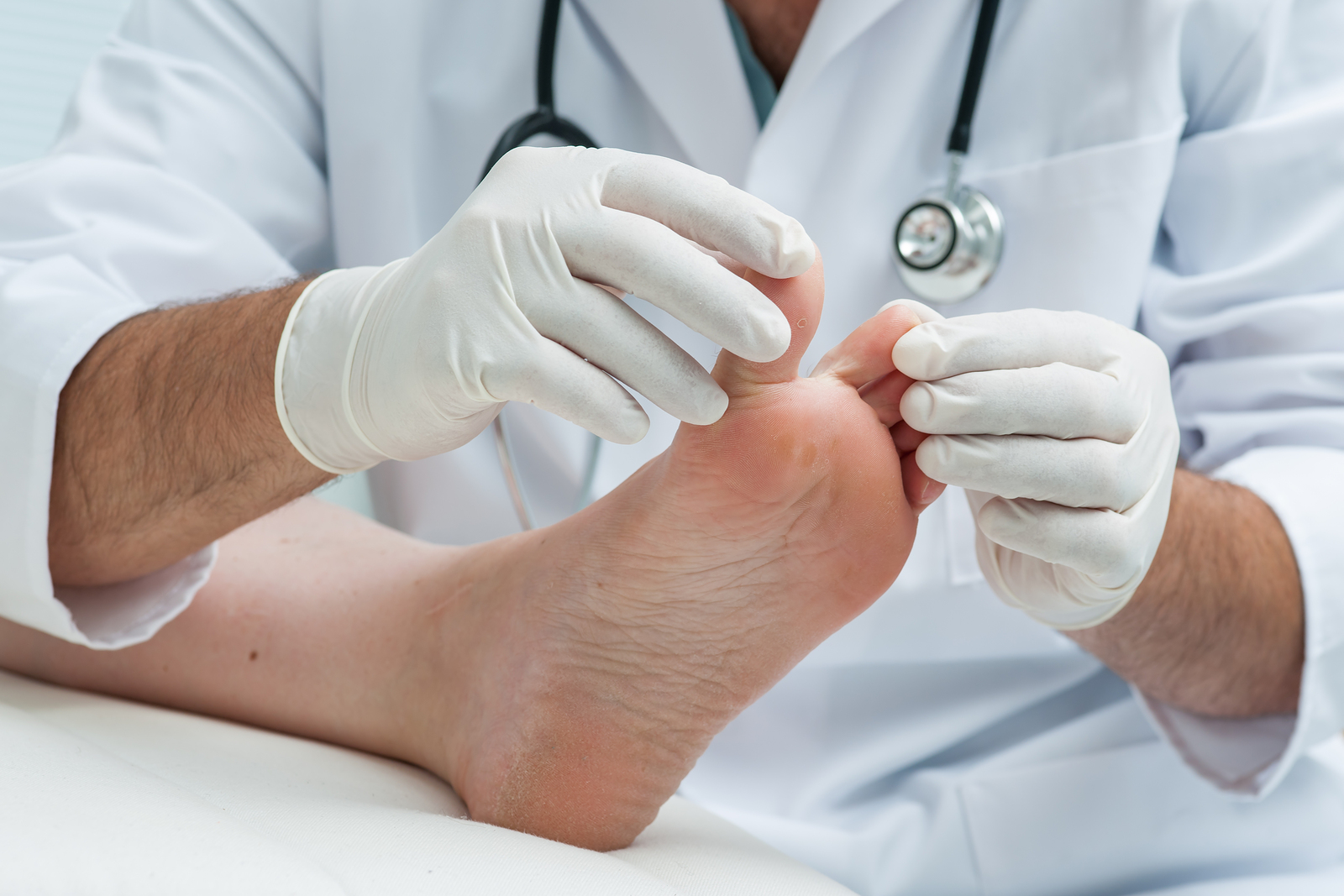 Doctor dermatologist examines the foot on the presence of athlete