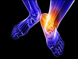 32.FootArthritis